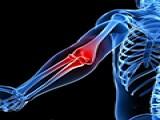 安全健身:4个经典常见动作错误训练纠正避免肩部肘关节手腕受伤