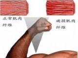 如何缓解健身后的肌肉酸痛?