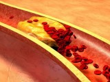 胆固醇真的不能吃吗?